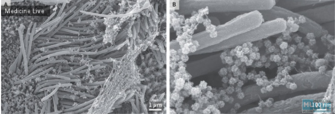 SARS-CoV-2 Инфекция клеток дыхательных путей