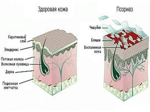 Что такое псориаз  Псориаз – это хроническое неинфекционное заболевание кожи, сопровождается появлением красновато-розовых высыпаний и шелушений кожи. Термин псориаз произошел от греческого слова psoriasis, что означает в переводе почесуха...