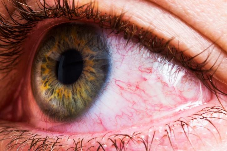 Что делать, если появилась сосудистая сетка на глазах?