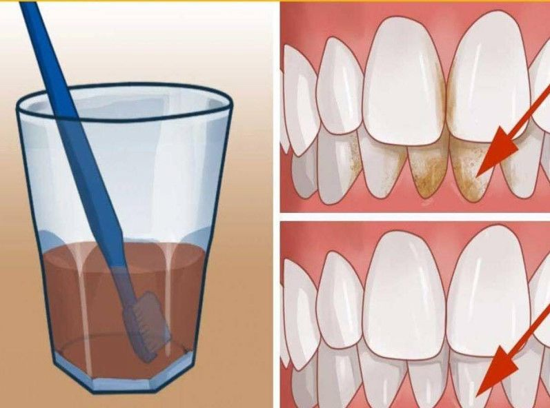 Превосходный способ очищения от зубного камня прямо у себя дома