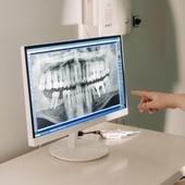 Рентгенографический снимок 1 зуба